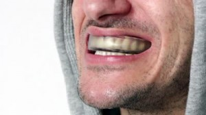 stock-footage-boxing-mouthpiece-dental