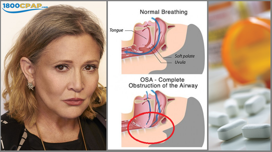 Sleep Apnea: A Factor in Carrie Fisher's Death