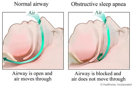 airway of sleep apnea diagram