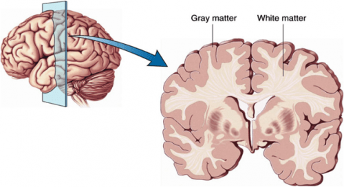 grey and white brain matter